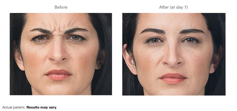 Botox-Before-After-4