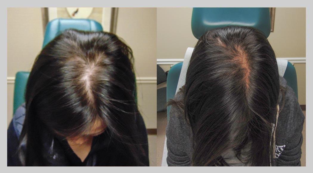 exosome-hair18