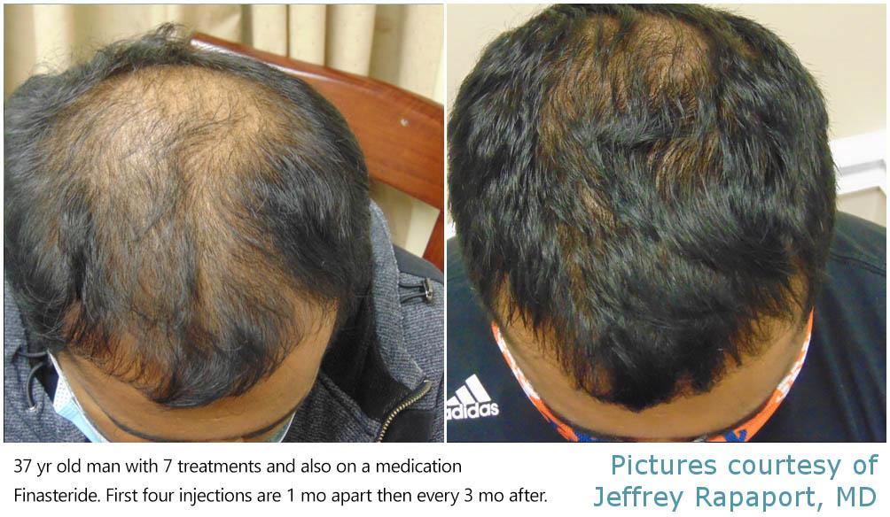 hair-restoration-2021-new-jersey
