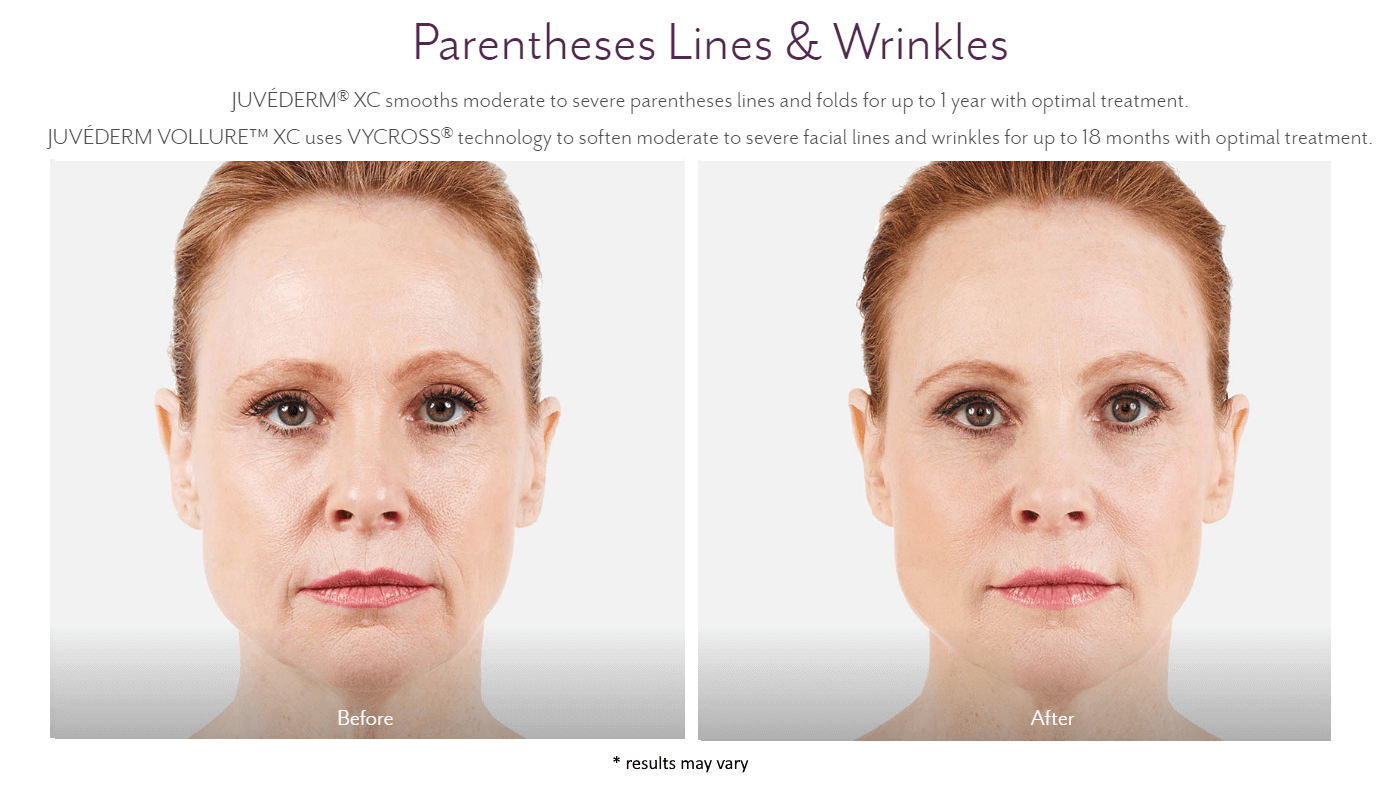 new-beauty-wellness-juvederm-before-and-after-3